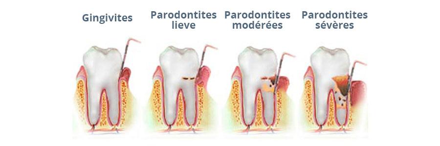 Parodontite---Fr