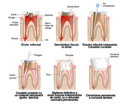 denta-clinic-tratament-canal