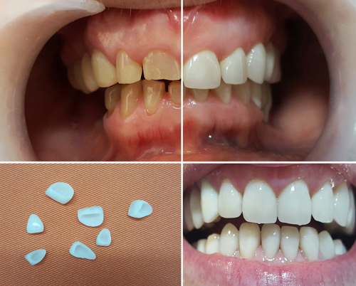 dentalclinic-fatete-dentale-510