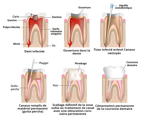 Tratament-de-canal